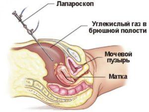Миома матки при беременности: опасность и особенности