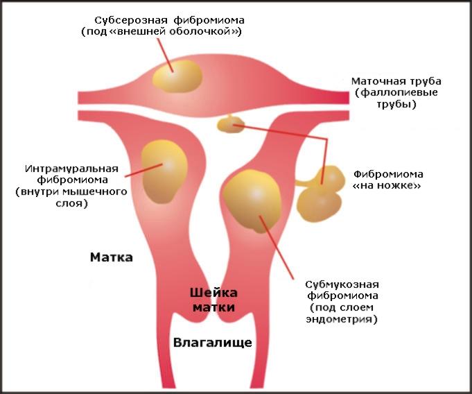 Фиброма матки: особенности, клиническая картина, лечение