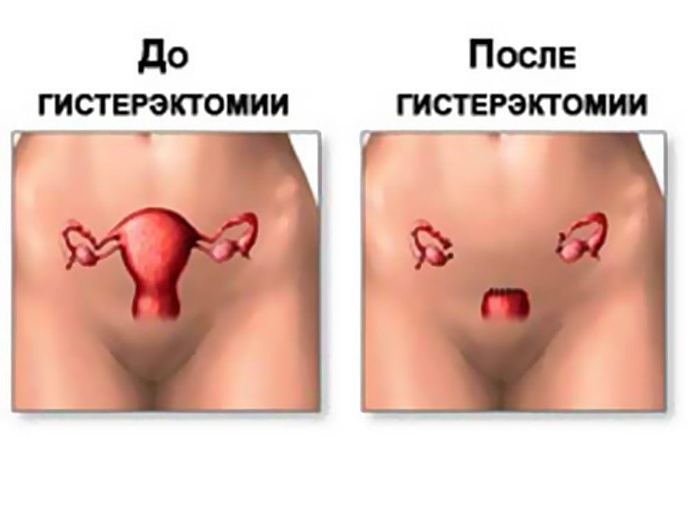 oralniy-seks-posle-polostnoy-operatsii-miomi-matki