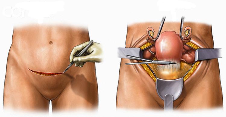 Операция при миоме матки как удаляют виды операций и послеоперационный период