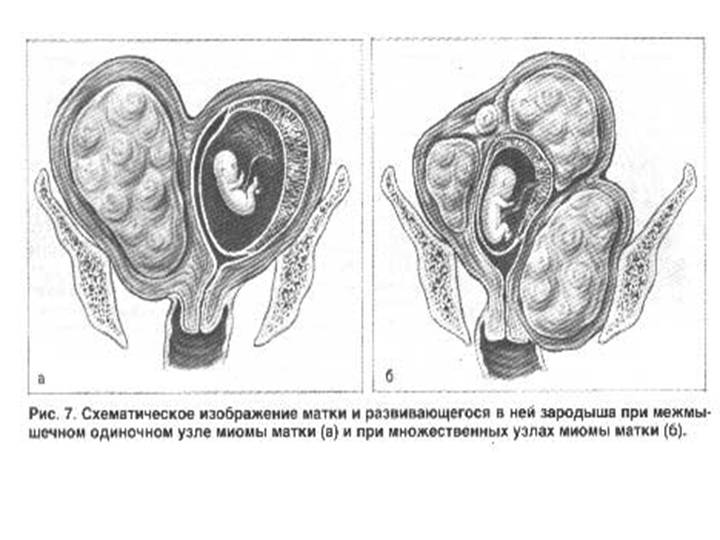 udalenie-miomi-vaginalno