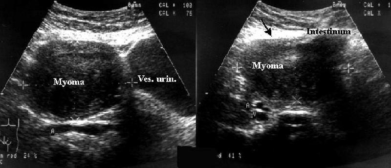 Миома матки 5 см при беременности