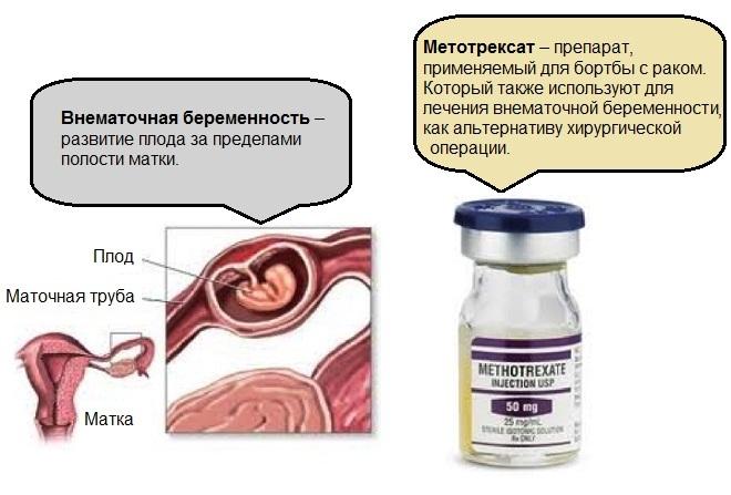 Внематочная беременность лечение цены