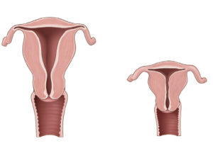 Гипоплазия матки или детская матка: степени, симптомы, причины, лечение. Можно ли забеременеть с детской маткой Размеры матки в норме
