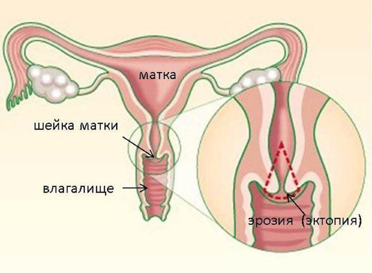 Эрозия шейки матки и молочница: взаимосвязь, лечение