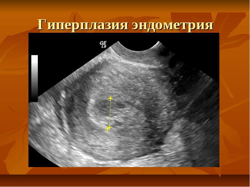 Осложнения гиперплазии эндометрия - Мед Плюс