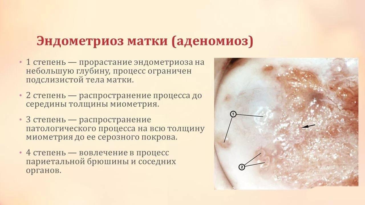 Эндометриоз матки: его причины, симптомы, диагностика, лечение