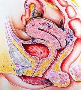 Как делают выскабливание матки при эндометриозе