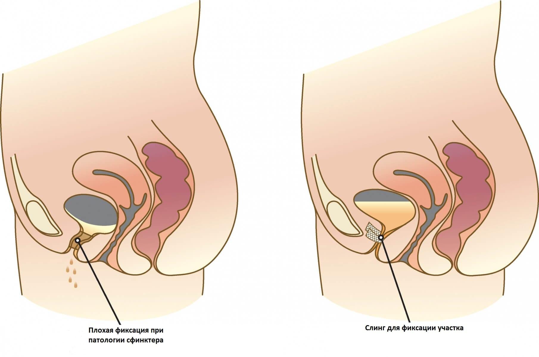 Симптомы и лечение давления при климаксе у женщин (гипертонии)