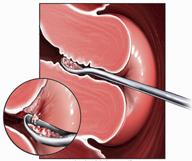 Когда наступает беременность после удаления полипа эндометрия