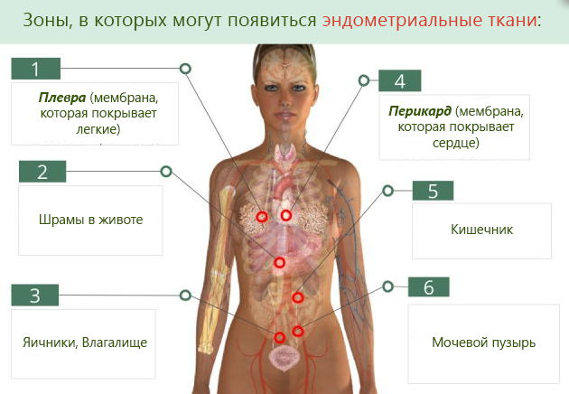Чем опасен эндометриоз (аденомиоз) для здоровья?