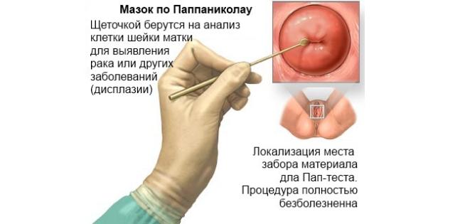 Роды при гипертрофии шейки матки