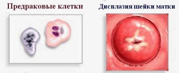 Предраковое состояние шейки матки: особенности и прогноз