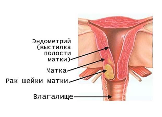 Рецидив рака шейки матки: причины, симптомы, лечение, прогноз