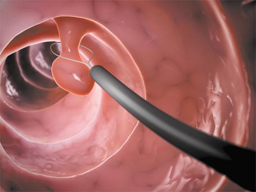 Полипы в матке: причины, симптомы, классификация и лечение