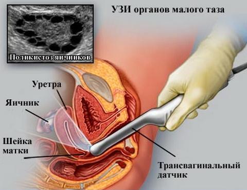 Растительные эстрогены