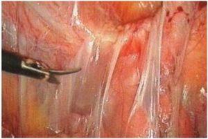 Спайки на яичниках что это такое симптомы спаечной болезни и как её лечить