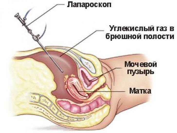 Онкомаркеры при миоме матки