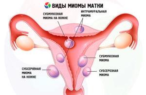Лечение миомы матки лекарственными препаратами