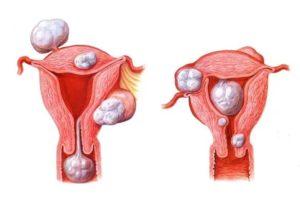 Как выглядит миома матки на фото УЗИ и когда лучше делать ультразвуковую диагностику как правильно подготовиться к процедуре