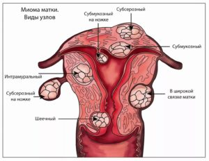 Можно ли принимать гормональные контрацептивы при миоме матки thumbnail