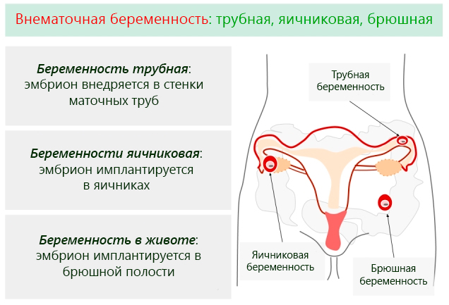 на каких сроках беременным ставят эмбриония