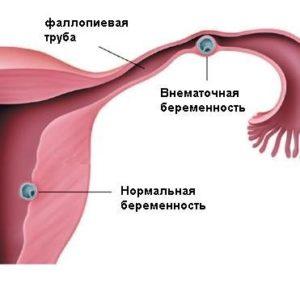 Возможна ли при эко внематочная беременность