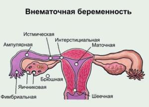 Трубная беременность код по мкб-10