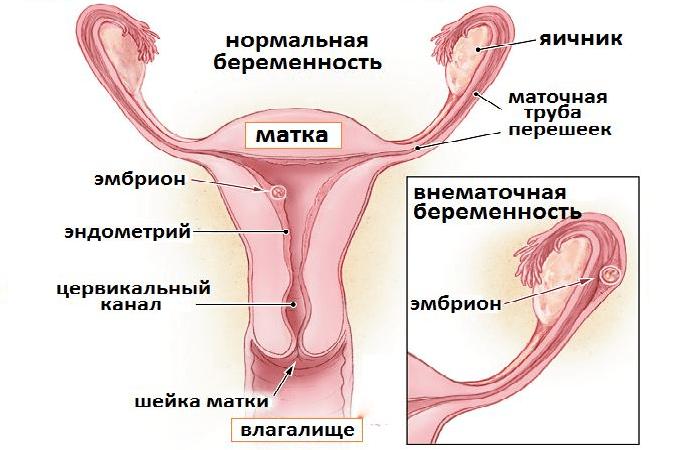 При внематочной беременности идут месячные