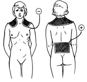 Что такое гипоплазия эндометрия и можно ли е вылечить