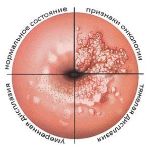 Чем отличается гистология от биопсии шейки матки — LiveAcademy