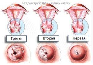 Прогноз и беременность при дисплазии шейки матки 3III степени