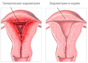 Чем остановить кровотечение при гиперплазии эндометрия thumbnail