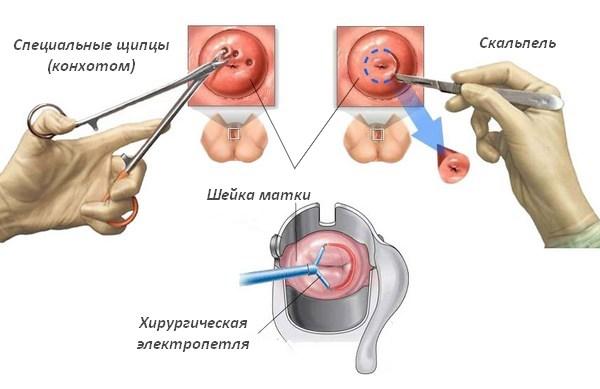 Биопсия шейки матки при эрозии шейки матки