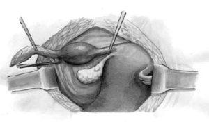 Этапы операции внематочной беременности