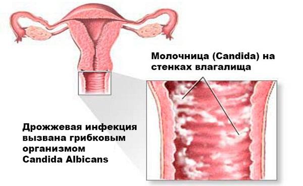 Эрозия матки заразна для мужчин