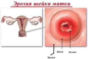 Djpвозможен секс при эррозии