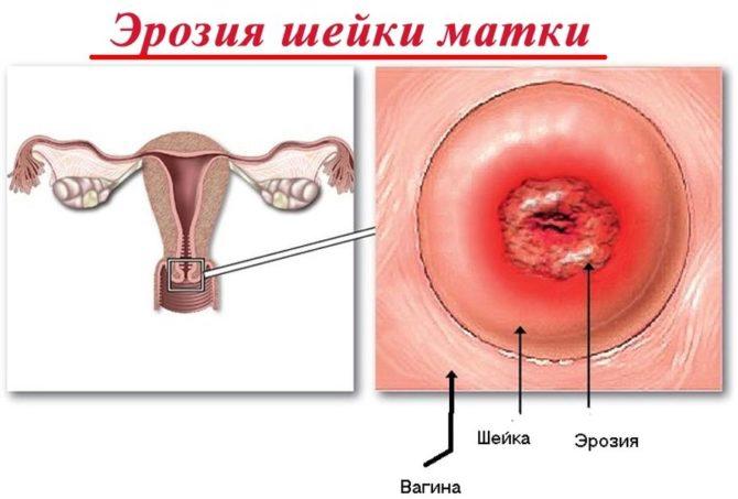 Секс матка больна