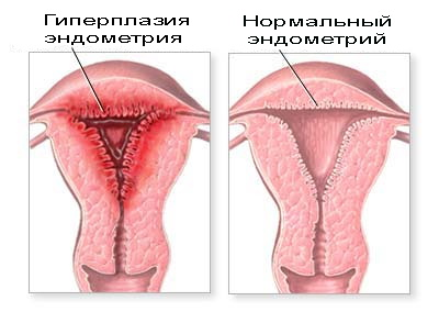 Секс при патологии эндометрия