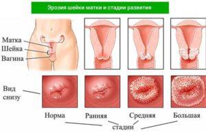Свечи при молочнице и эрозии шейки матки
