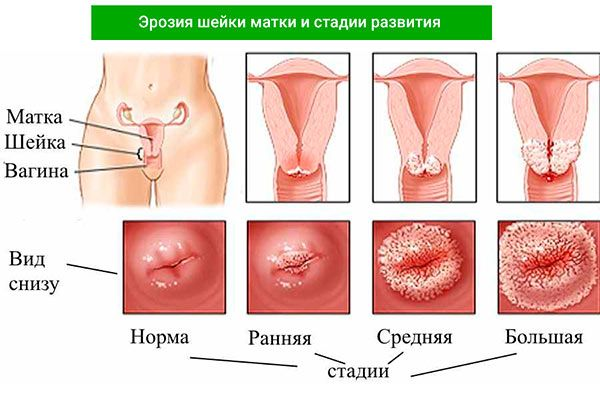 Эрозия шейки матки лечение тампонами