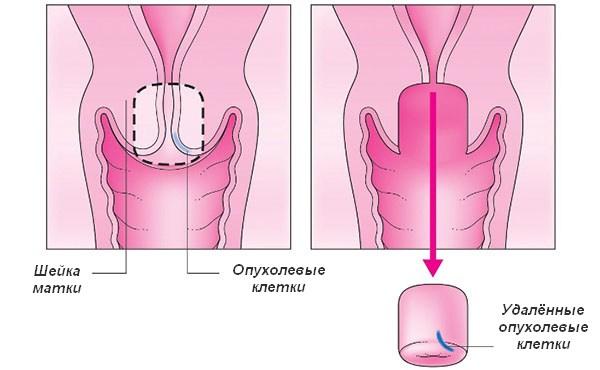 Секс при гипоплазия матки