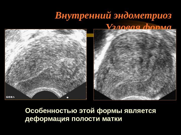 Диагностика эндометриоза признаки на УЗИ