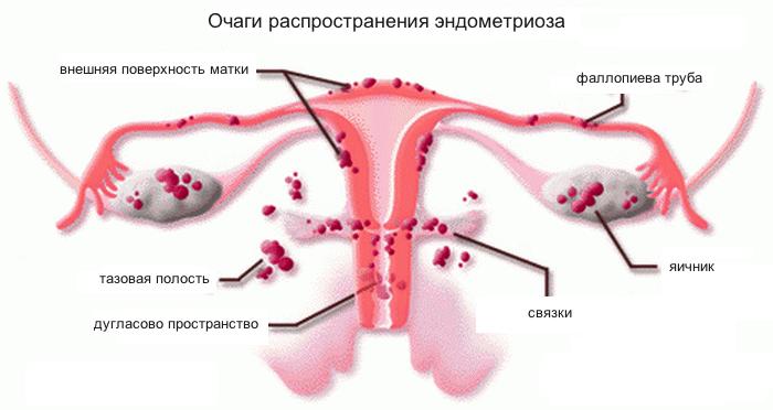 Как эндометриоз влияет на беременность ответы врачей консультация