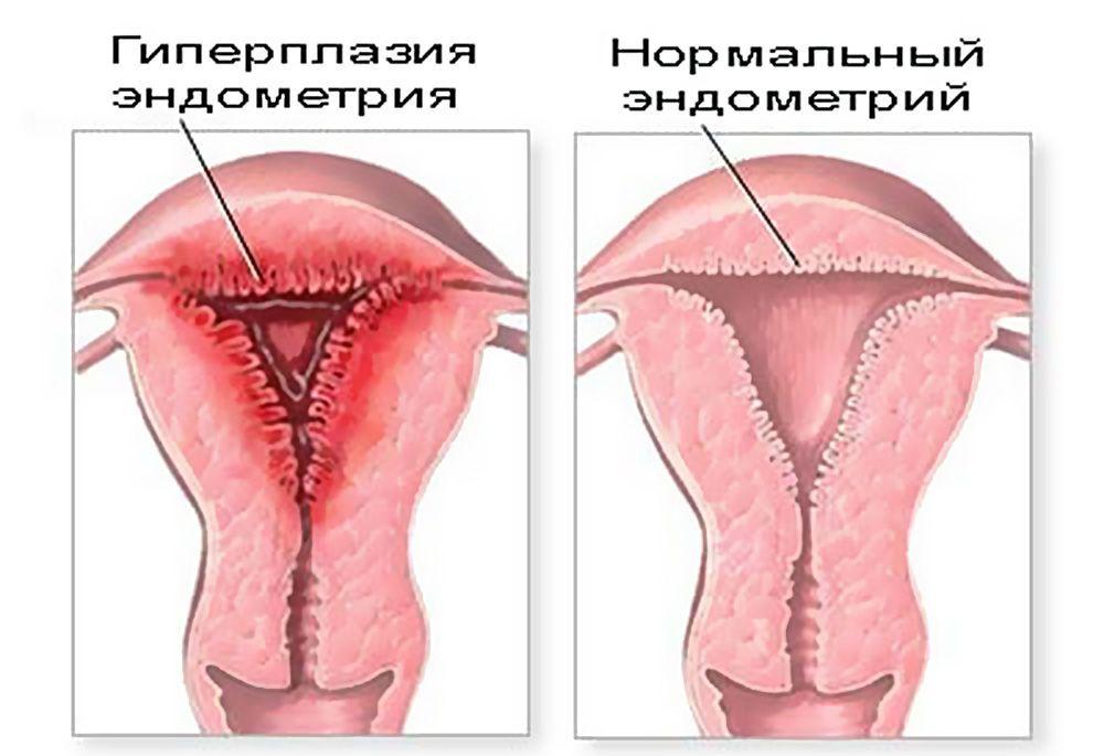 Основные признаки гиперпластических процессов эндометрия