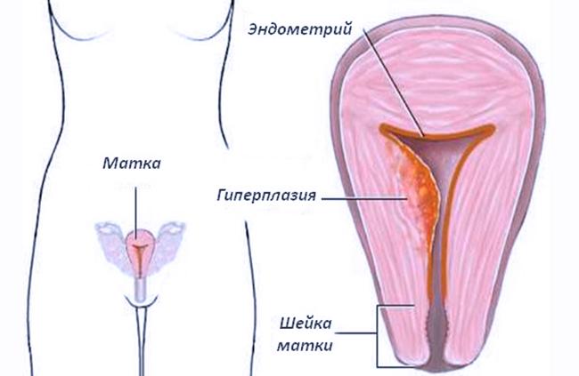 Гиперплазия эндометрия и беременность совместимы