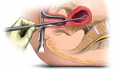 Лечение гиперплазии эндометрия после выскабливания
