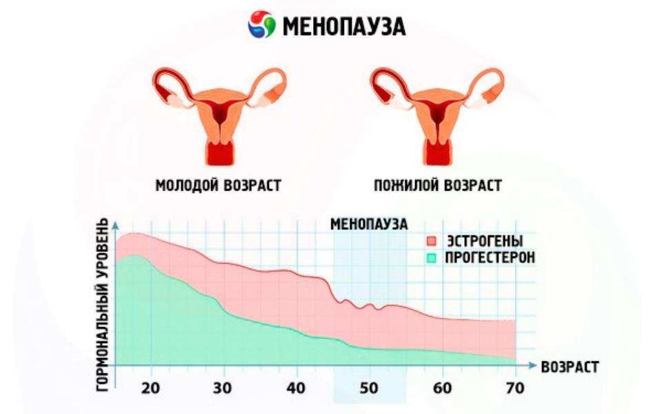 развитие климактерического синдрома