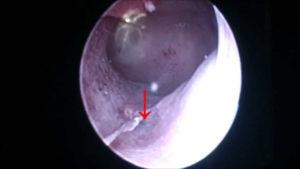 Что такое серозометра матки в менопаузе, как ее лечить?