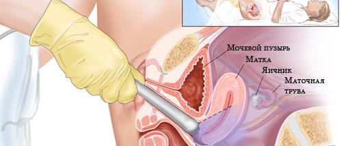 Как сдавать спермограмму Подготовка к спермограмме